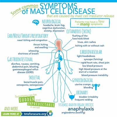 Neurofeedback Tucson AZ Common Symptoms of Mast Cell Disease